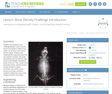 Bone Density Challenge Introduction